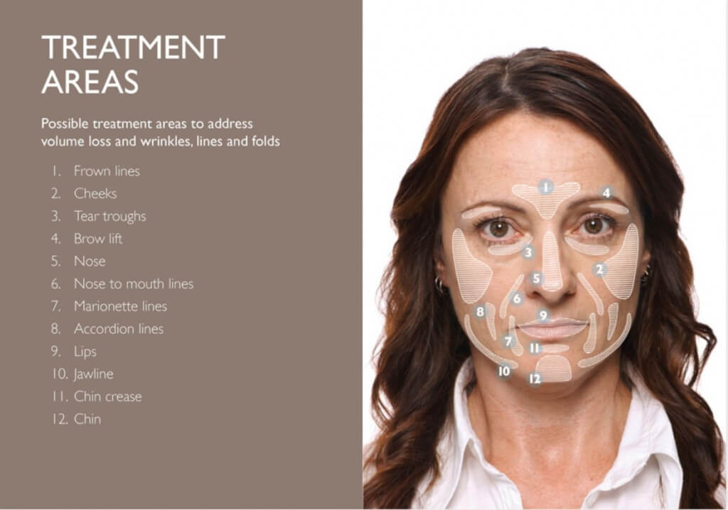 Bioscor Anti-wrinkle and Hyaluronic Acid Fillers Treatment Areas for the face