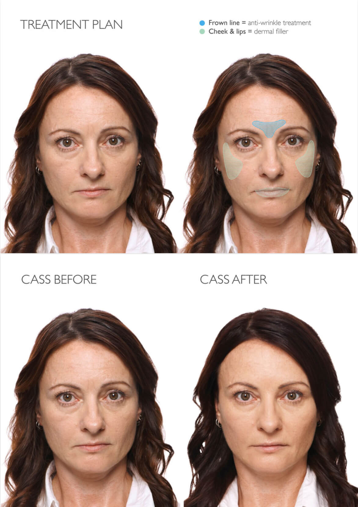 Bioscor International facial anti-wrinkles, botox, dysport, fillers, hyaluronic acid treatment areas Case Study Cass Before and After