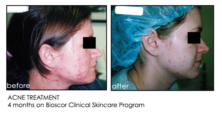bioscor acne before and after
